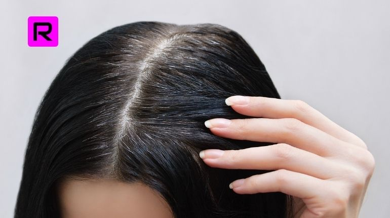 Best 14 Tips How To Reduce White Hair